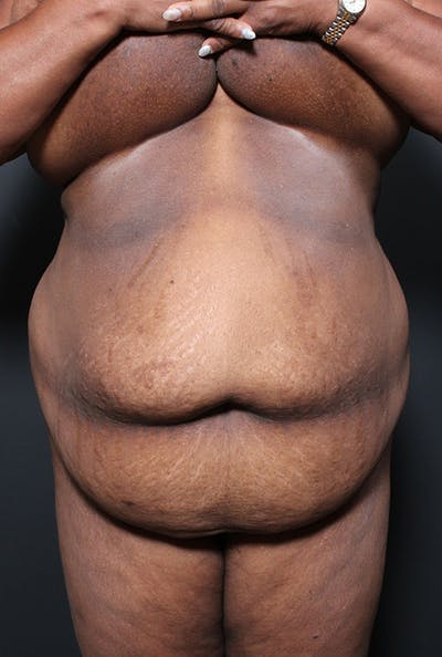 Tummy Tuck Gallery - Patient 20543298 - Image 1