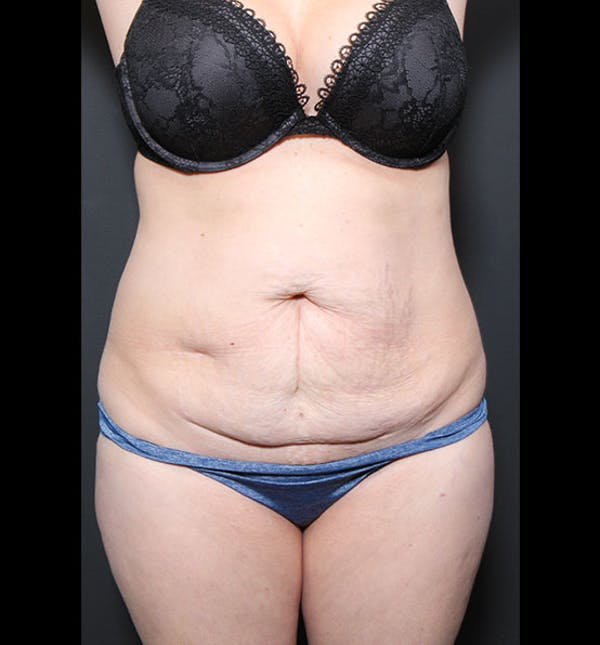 Tummy Tuck Gallery - Patient 20543299 - Image 1