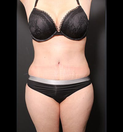 Tummy Tuck Gallery - Patient 20543299 - Image 2