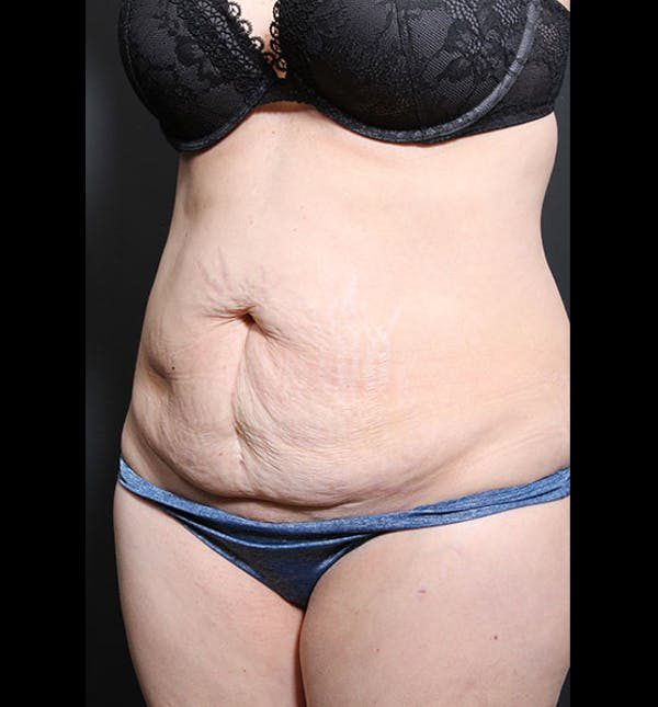 Tummy Tuck Gallery - Patient 20543299 - Image 3
