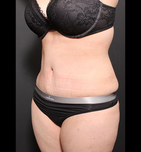 Tummy Tuck Gallery - Patient 20543299 - Image 4