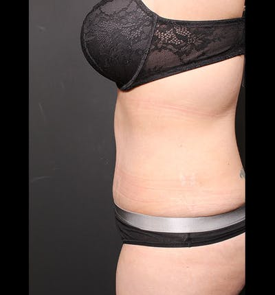 Tummy Tuck Gallery - Patient 20543299 - Image 6