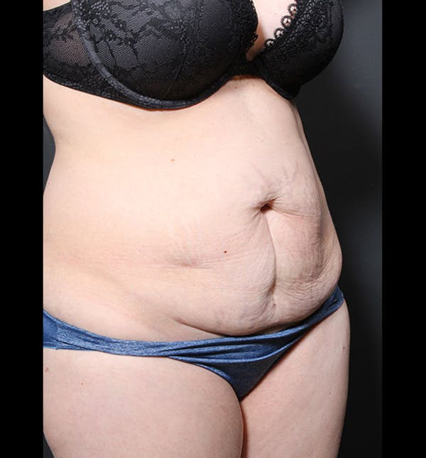 Tummy Tuck Gallery - Patient 20543299 - Image 7