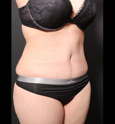 Tummy Tuck Gallery - Patient 20543299 - Image 8