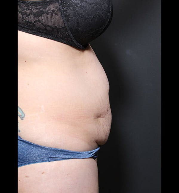 Tummy Tuck Gallery - Patient 20543299 - Image 9