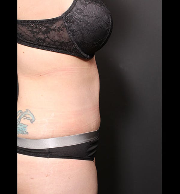 Tummy Tuck Gallery - Patient 20543299 - Image 10