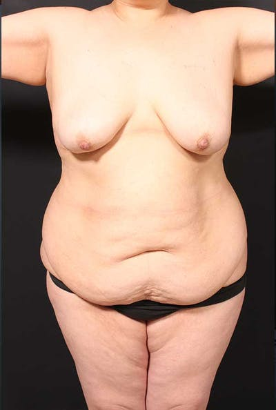 Tummy Tuck Gallery - Patient 20543300 - Image 1