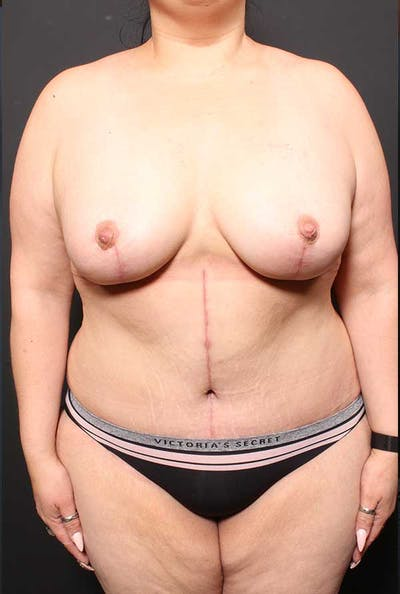 Tummy Tuck Gallery - Patient 20543300 - Image 2