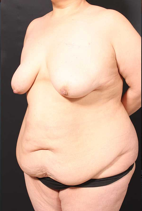 Tummy Tuck Gallery - Patient 20543300 - Image 3