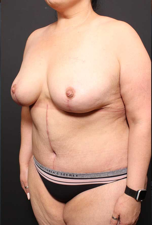 Tummy Tuck Gallery - Patient 20543300 - Image 4