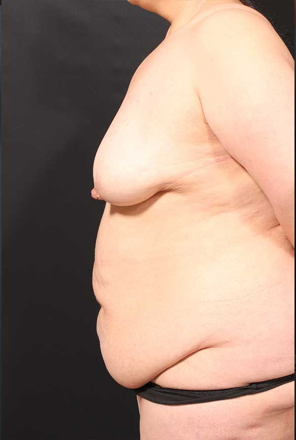 Tummy Tuck Gallery - Patient 20543300 - Image 5