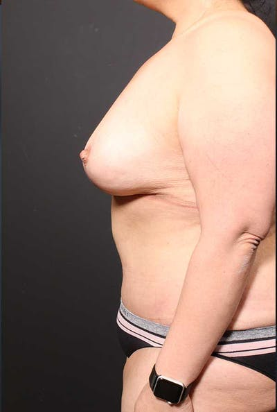 Tummy Tuck Gallery - Patient 20543300 - Image 6