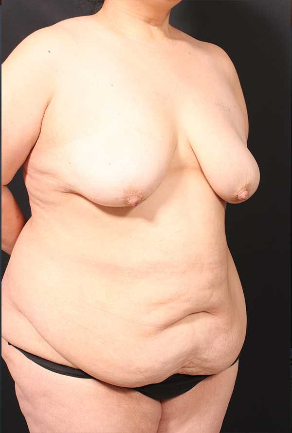 Tummy Tuck Gallery - Patient 20543300 - Image 7