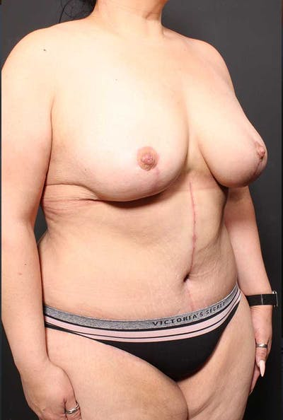 Tummy Tuck Gallery - Patient 20543300 - Image 8
