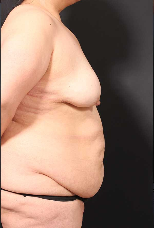 Tummy Tuck Gallery - Patient 20543300 - Image 9