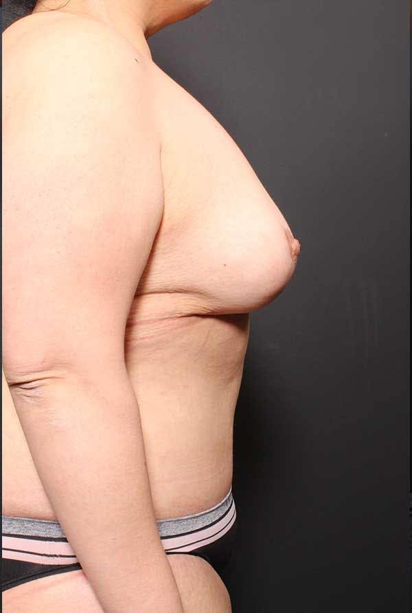 Tummy Tuck Gallery - Patient 20543300 - Image 10