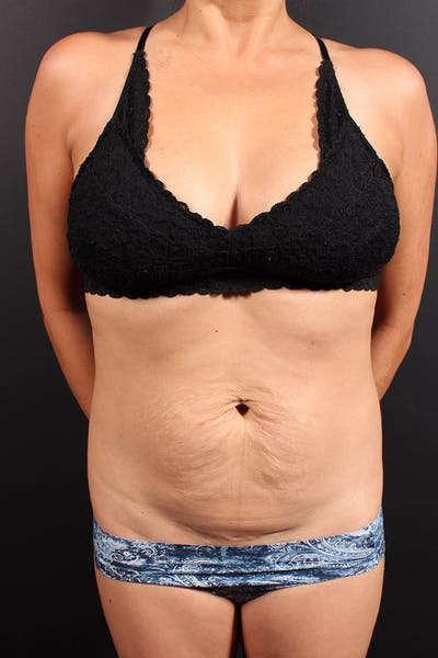 Tummy Tuck Gallery - Patient 20543301 - Image 1