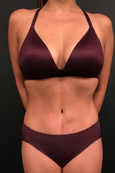 Tummy Tuck Gallery - Patient 20543301 - Image 2