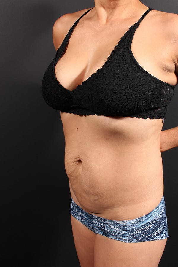 Tummy Tuck Gallery - Patient 20543301 - Image 3