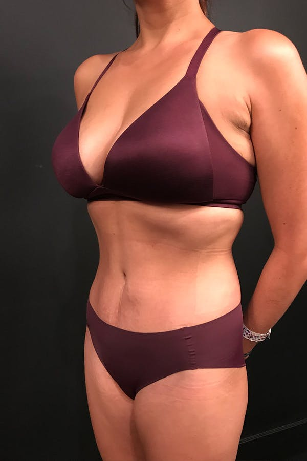 Tummy Tuck Gallery - Patient 20543301 - Image 4