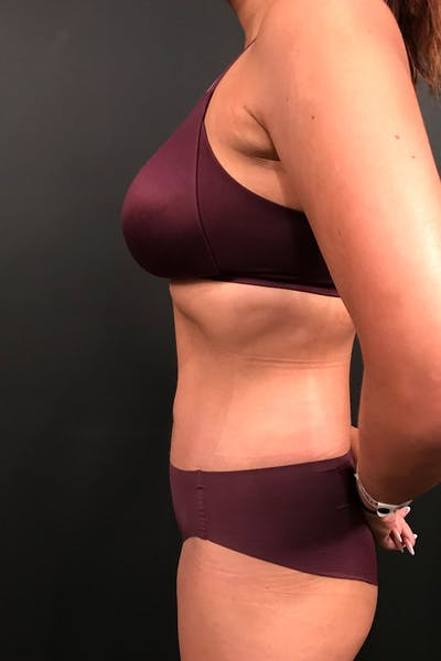 Tummy Tuck Gallery - Patient 20543301 - Image 6