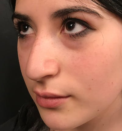 Rhinoplasty Gallery - Patient 20544065 - Image 1