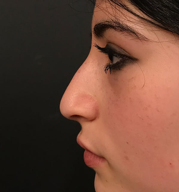Rhinoplasty Gallery - Patient 20544065 - Image 3