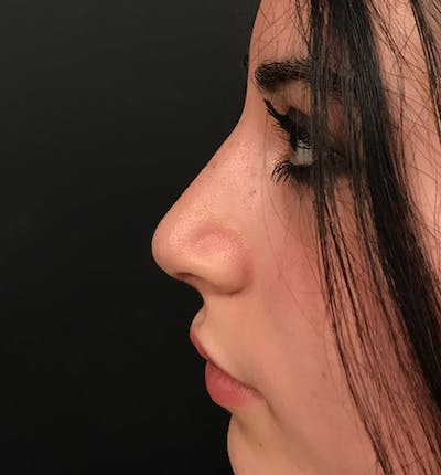 Rhinoplasty Gallery - Patient 20544065 - Image 4