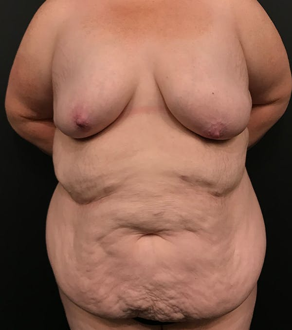 Breast Lift Mastopexy Gallery - Patient 52321425 - Image 1