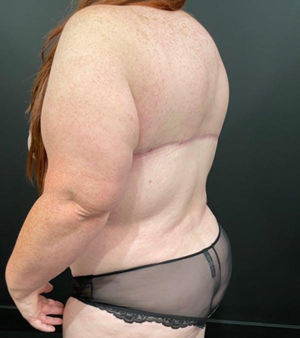 Breast Lift Mastopexy Gallery - Patient 52321425 - Image 3