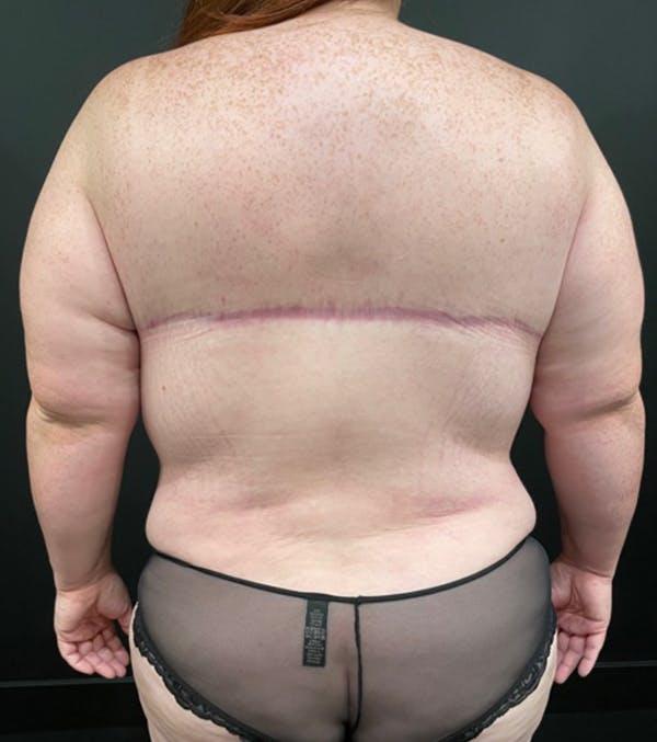 Breast Lift Mastopexy Gallery - Patient 52321425 - Image 7
