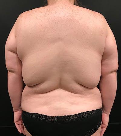 Breast Lift Mastopexy Gallery - Patient 52321425 - Image 8