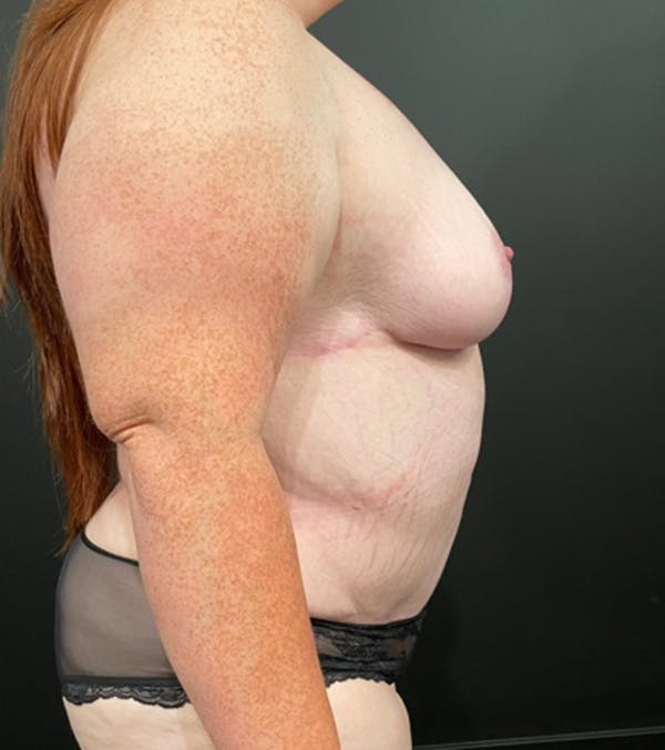 Breast Lift Mastopexy Gallery - Patient 52321425 - Image 9