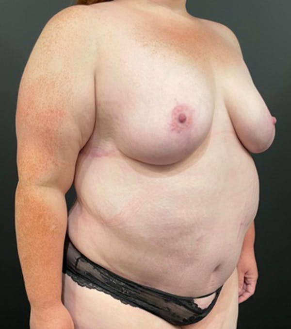 Breast Lift Mastopexy Gallery - Patient 52321425 - Image 11