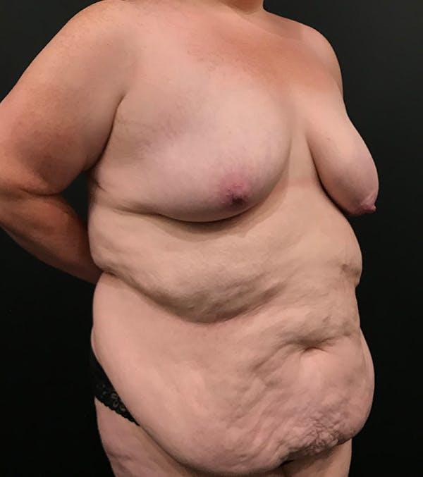 Breast Lift Mastopexy Gallery - Patient 52321425 - Image 12