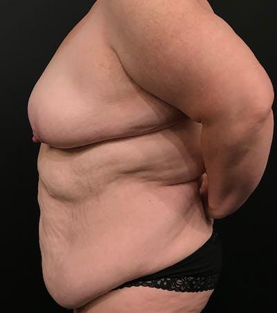 Breast Lift Mastopexy Gallery - Patient 52321425 - Image 14