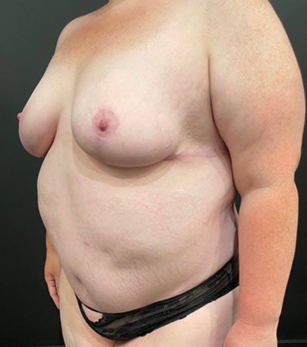 Breast Lift Mastopexy Gallery - Patient 52321425 - Image 15
