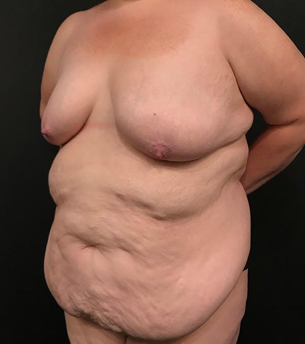 Breast Lift Mastopexy Gallery - Patient 52321425 - Image 16
