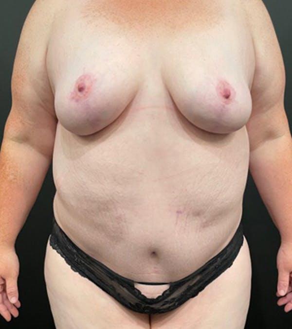 Breast Lift Mastopexy Gallery - Patient 52321425 - Image 2