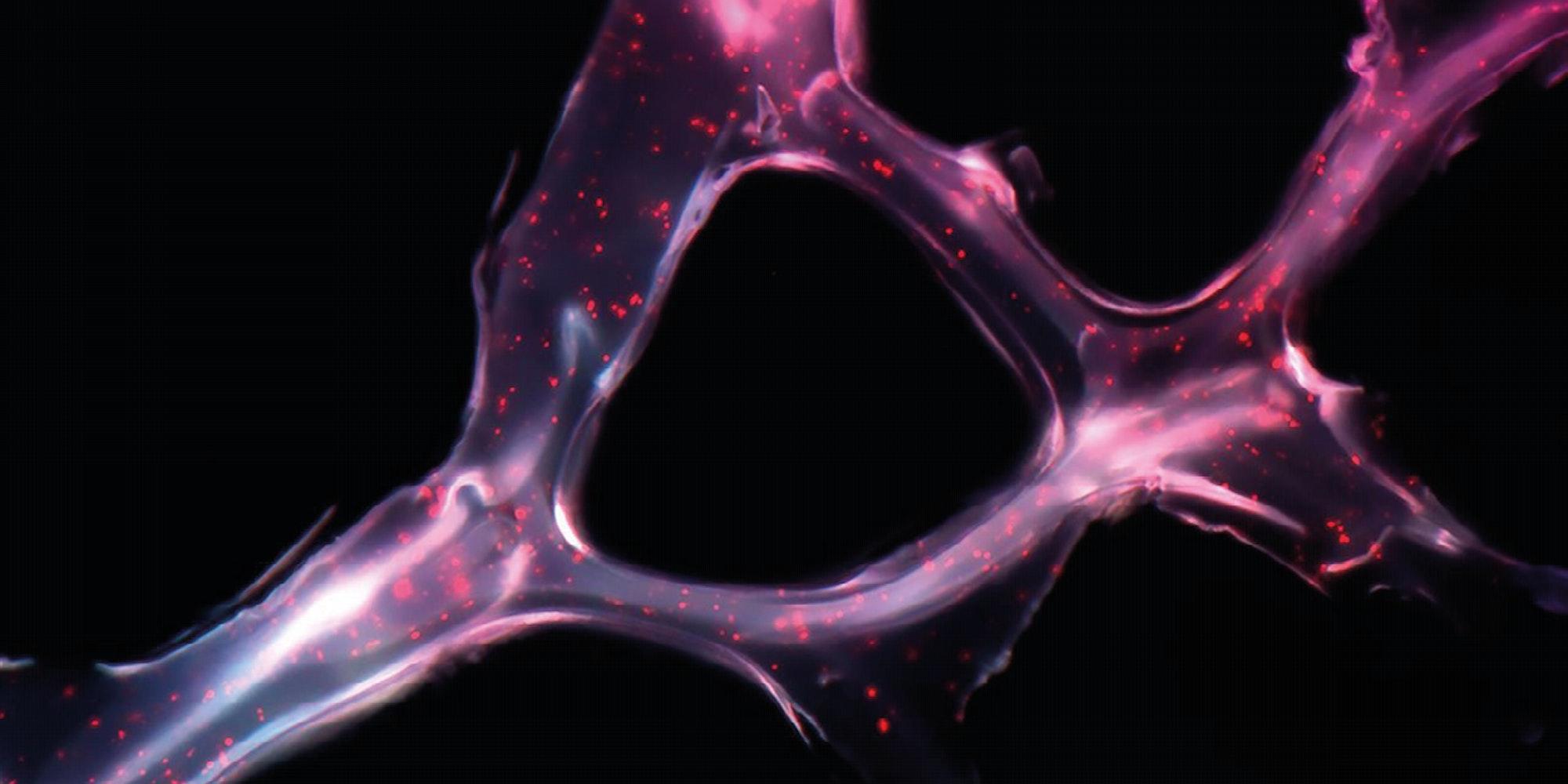 Cover Image for Mitos y realidades sobre el cáncer