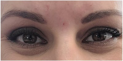 Botox Gallery - Patient 47773819 - Image 1