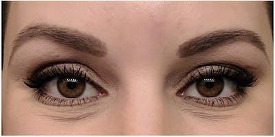 Botox Gallery - Patient 47773819 - Image 2