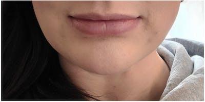 Botox Gallery - Patient 47773820 - Image 2