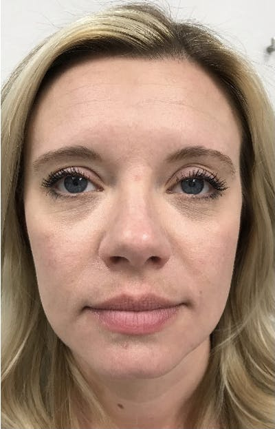 Hydrafacial  Gallery - Patient 47773827 - Image 2