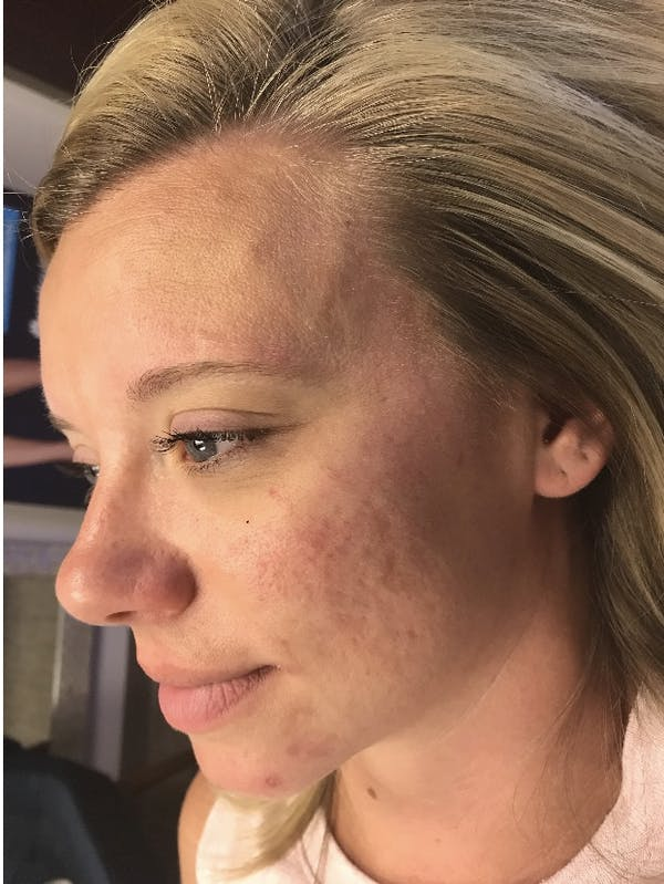 Hydrafacial  Gallery - Patient 47773827 - Image 5