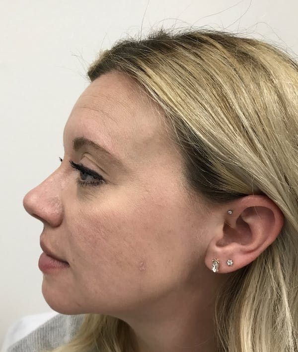 Hydrafacial  Gallery - Patient 47773827 - Image 6