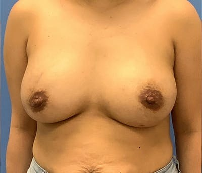 Breast Augmentation Gallery - Patient 56986230 - Image 2