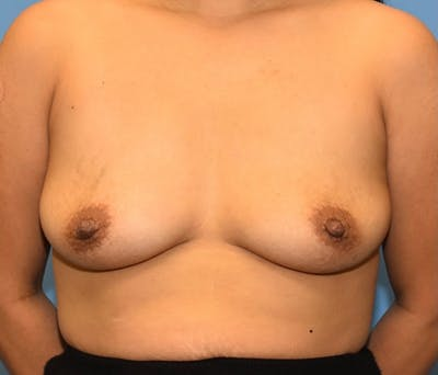 Breast Augmentation Gallery - Patient 56986230 - Image 1