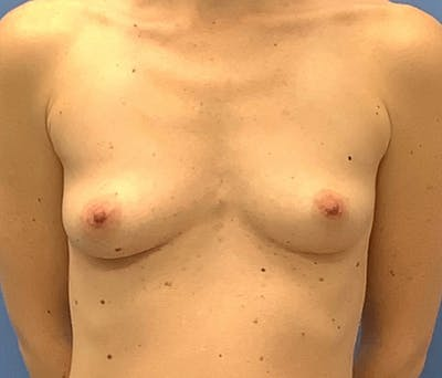 Breast Augmentation Gallery - Patient 56986231 - Image 1