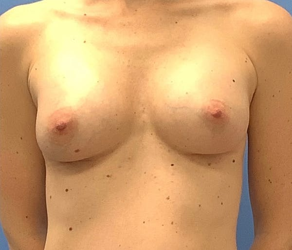 Breast Augmentation Gallery - Patient 56986231 - Image 2